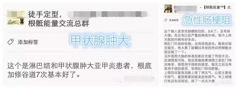 北京昌平区吴金乐跟骶推拿按摩培训班能调理食道癌吗